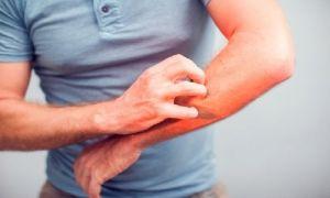Si sientes mucho prurito en la noche o al calor podría tratarse de un parásito en la piel